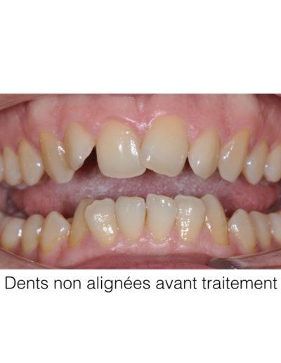 patient-orthodontie-00001