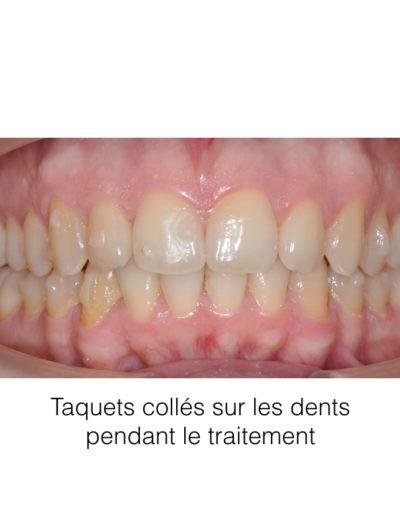 patient-orthodontie-00002