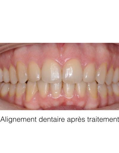 patient-orthodontie-00005