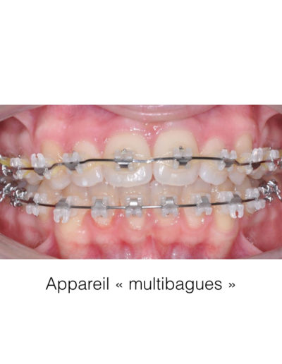 patient-orthodontie-00006