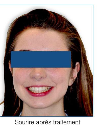 patient-orthodontie-00007