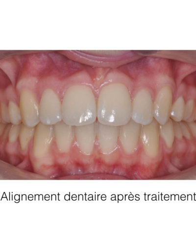 patient-orthodontie-00008