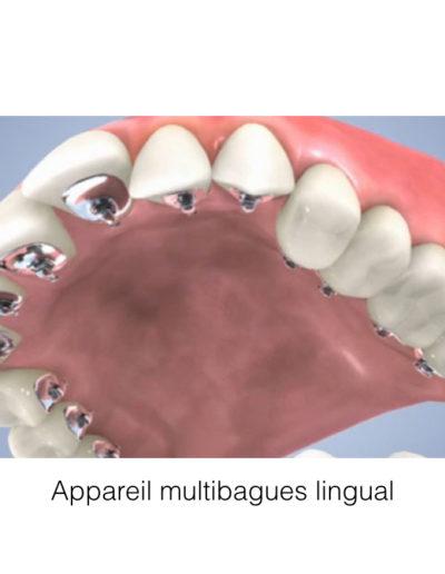 patient-orthodontie-00009