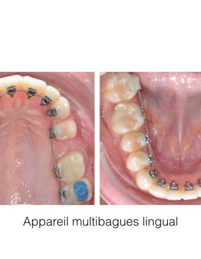 patient-orthodontie-00010
