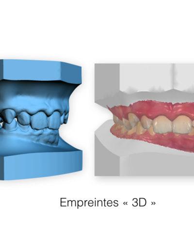 patient-orthodontie-00012