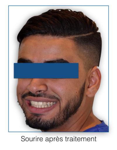 patient-orthodontie-00014