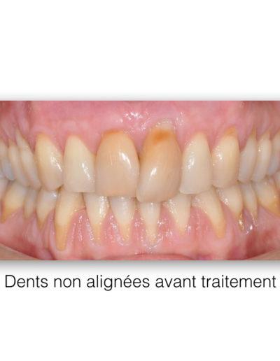 patient-orthodontie-00015
