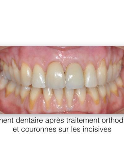 patient-orthodontie-00016
