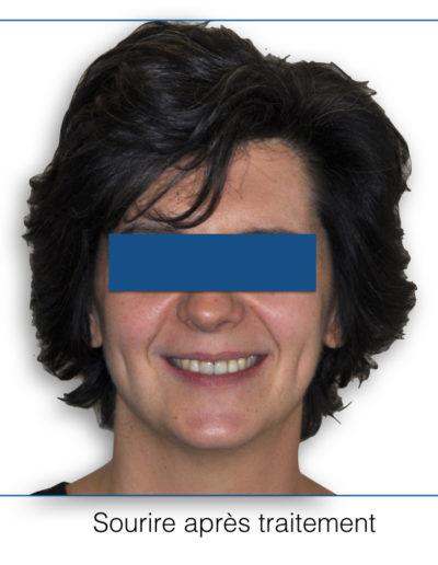 patient-orthodontie-00017