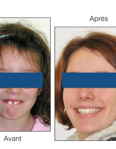 patient-orthodontie-00018